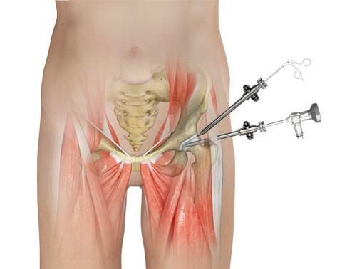 artroscopia de quadril