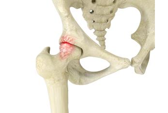 Ortopedista especialista em impacto femoroacetabular