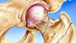 Ortopedista especialista em fratura de quadril