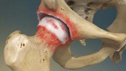 artrose coxofemoral