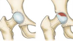 Ortopedista especialista em quadril Dr. Roni Serra